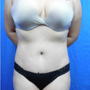 Tummy Tuck Before & After Patient #4042