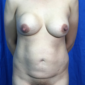 Tummy Tuck Before & After Patient #4045