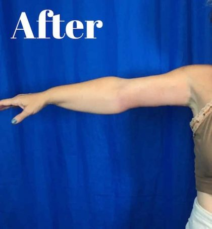 Arm Lift Before & After Patient #3949