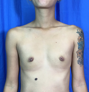 Breast Augmentation Before & After Patient #3966