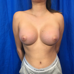 Breast Augmentation Before & After Patient #3969