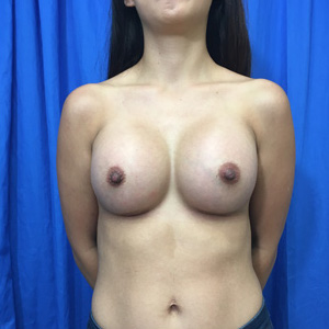 Breast Augmentation Before & After Patient #3972