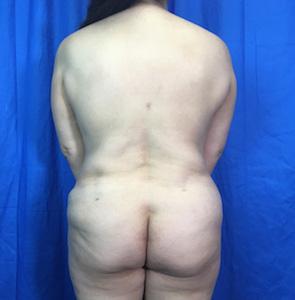 Brazilian Butt Lift Before & After Patient #3957