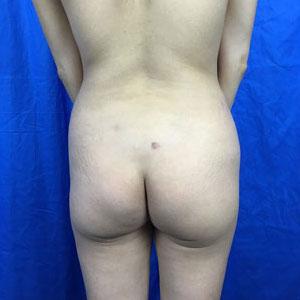 Brazilian Butt Lift Before & After Patient #3960