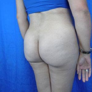 Brazilian Butt Lift Before & After Patient #3963