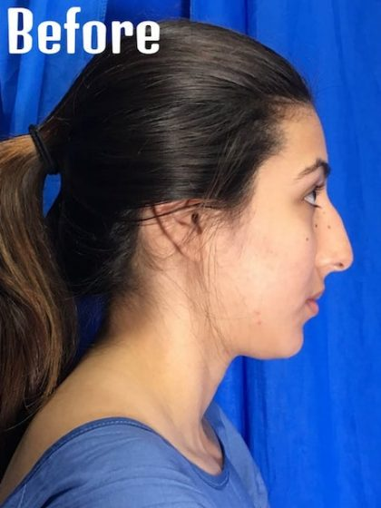 Facelift Before & After Patient #3987