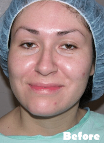Facelift Before & After Patient #4001