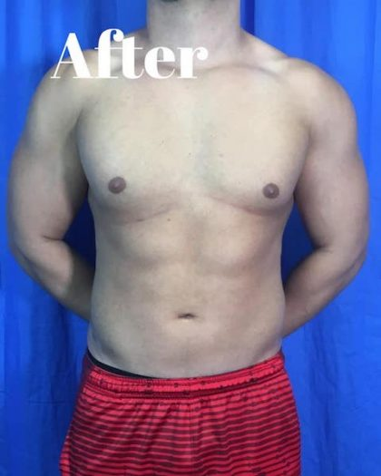 Liposuction Before & After Patient #4011
