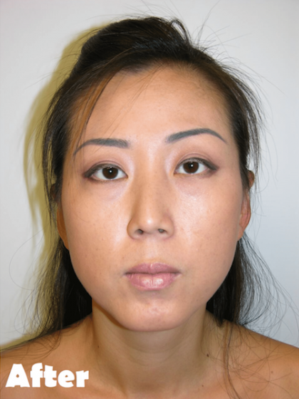 Neck Lift Before & After Patient #4029