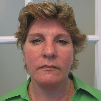 Neck Lift Before & After Patient #4021