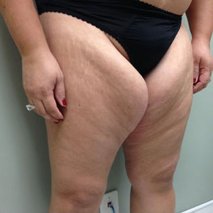 Thigh Lift Before & After Patient #4036