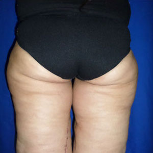 Thigh Lift Before & After Patient #4039